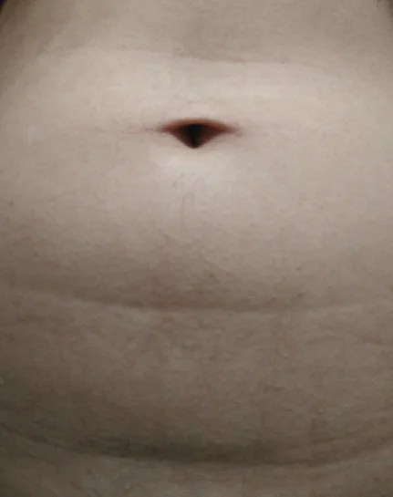 Dent In Stomach : stomach, Stomach, Distributed, Below, Belly, Button, Pouch,, Smooth, Stomach., Options?, (photos)
