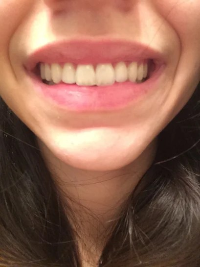 Filing Canine Teeth Before And After : filing, canine, teeth, before, after, There, Restore, Front, Tooth, After, Dentist, Filed, Much?, (photos)
