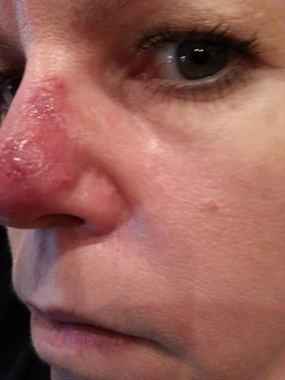 July 1 2014 - MOHs Surgery on Nose - 45 Year Old Female ...
