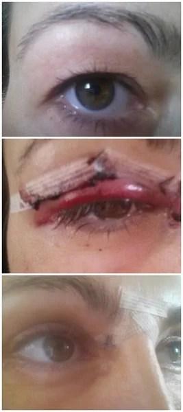 Upper Hooded Eyelids UK Eyelid Surgery Review