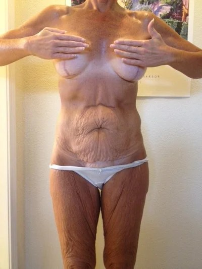 Extended Tummy Tuck Best for Me? (photo) Doctor Answers, Tips