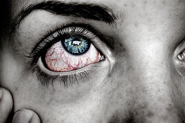 Fibromyalgia and teary painful eyes