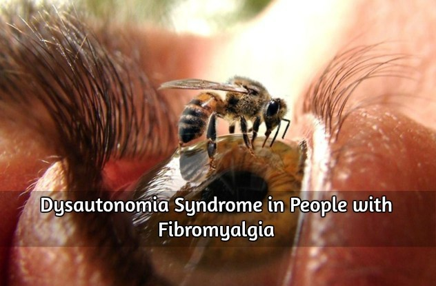 Dysautonomia Syndrome in People with Fibromyalgia