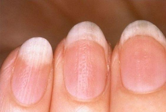Fibromiyaljinin 70'den fazla semptomunun listesi