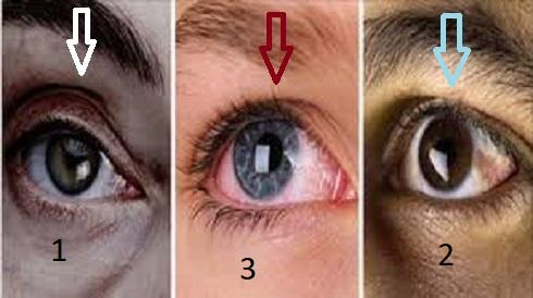 Gli effetti della fibromialgia sugli occhi