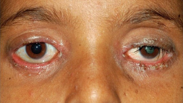 What is Blepharitis? How it is linked with Fibromyalgia