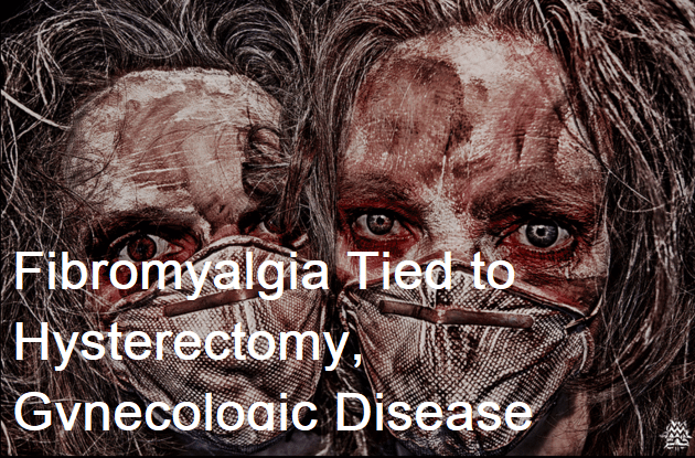 Fibromyalgia Tied to Hysterectomy, Gynecologic Disease