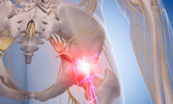 Facts and FAQs About Sciatica, Low Back and Leg Pain