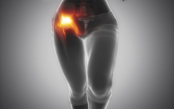 Fibromyalgia and Hip Flexor Pain