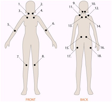 Tender Point Check-up For Fibromyalgia