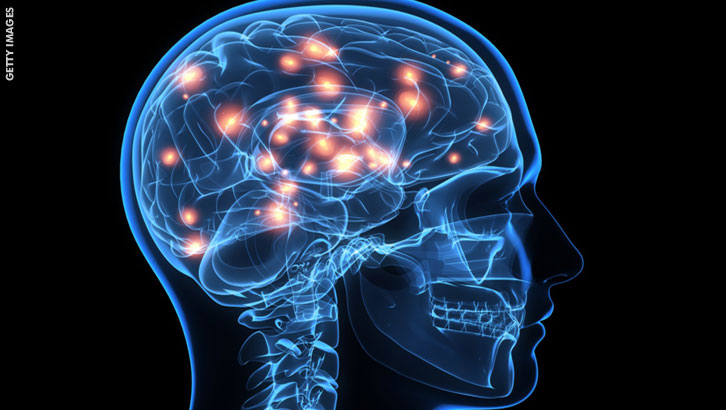 Evidence of Nerve Damage in about Half of Fibromyalgia Patients
