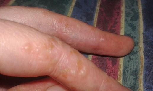 left fingers 2