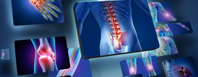 Fibromyalgia Patients Who Undergo Spinal Fusion Surgery Have More Postoperative Complications, Study Suggests