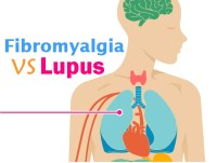 Fibromyalgia and Lupus