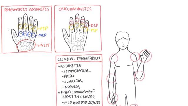 Rheumatoid Arthritis Pathophysiology hand