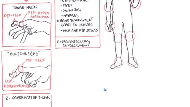 Rheumatoid Arthritis Pathophysiology anatomy