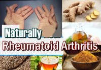 How to Treat Rheumatoid Arthritis Naturally