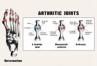 Early Rheumatoid Arthritis