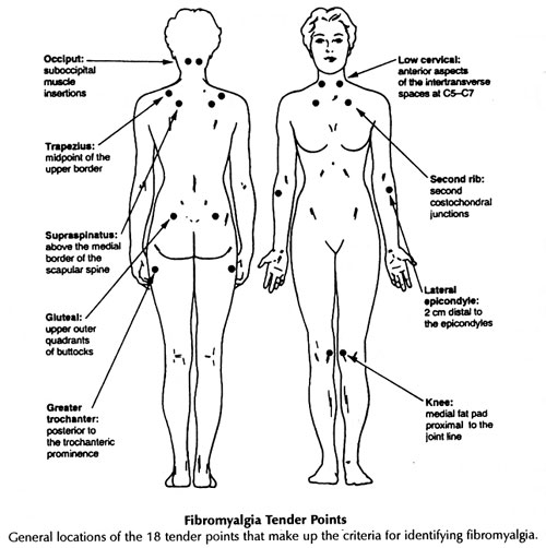 18 tender points of fibromyalgia diagram computer architecture block trigger fibro spots spot the locations