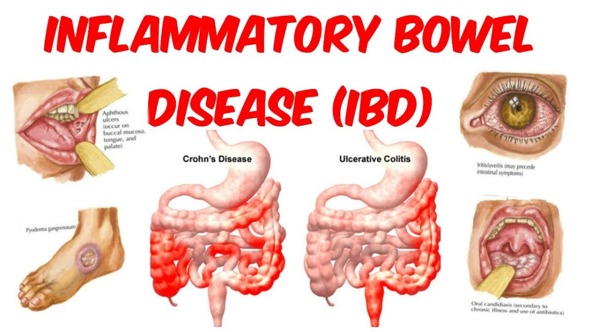 How Inflammatory Bowel Disease Affiliated with Fibromyalgia.