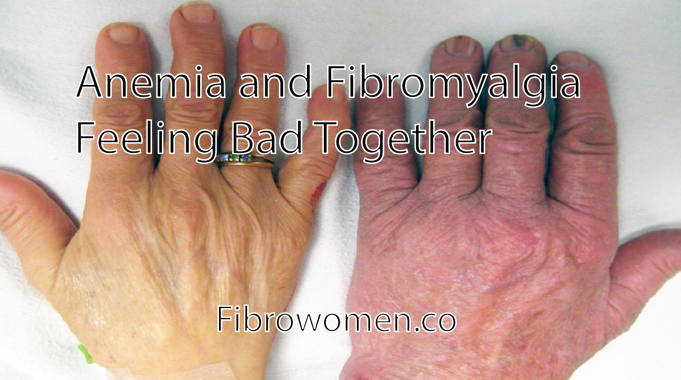 You are currently viewing Anemia and Fibromyalgia Feeling Bad Together
