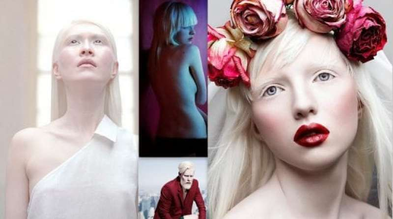 TOP 5 ALBINO MODEL IN THE WORLD