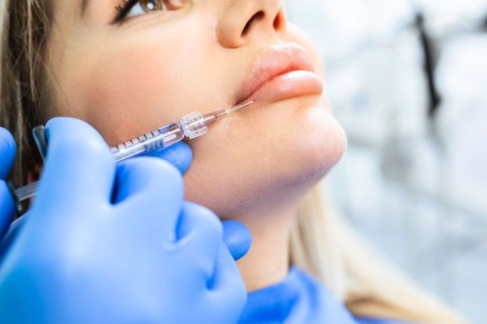 Excess lip filler can migrate around the lips if too much is injected.