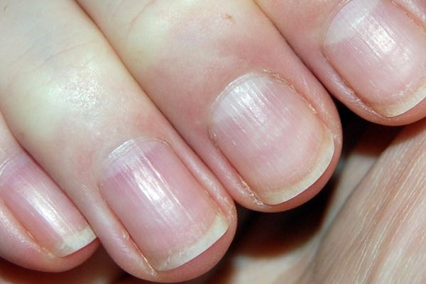 fibromyalgie et ongles cassants