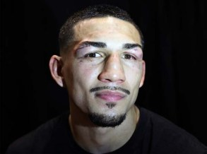 Teofimo Lopez After Stitches