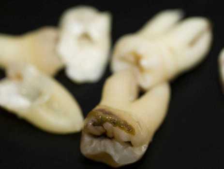 Próchnica zębów. Czy można ją cofnąć?
