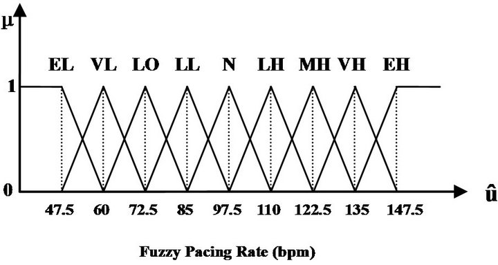 A Novel Design of Fuzzy PID Controllers for Dual-Sensor