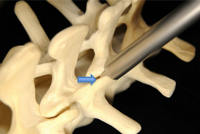 Clinical Evaluation of TruFUSE Lumbar Facet Fusion System