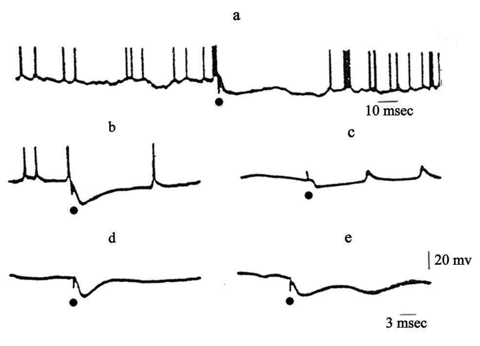 Significance of the Thalamic Reticular Nucleus GABAergic