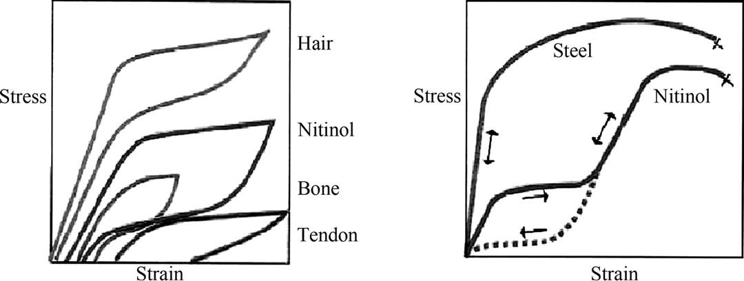 Nitinol Stenting in Post-Traumatic Pseudo-Aneurysm of