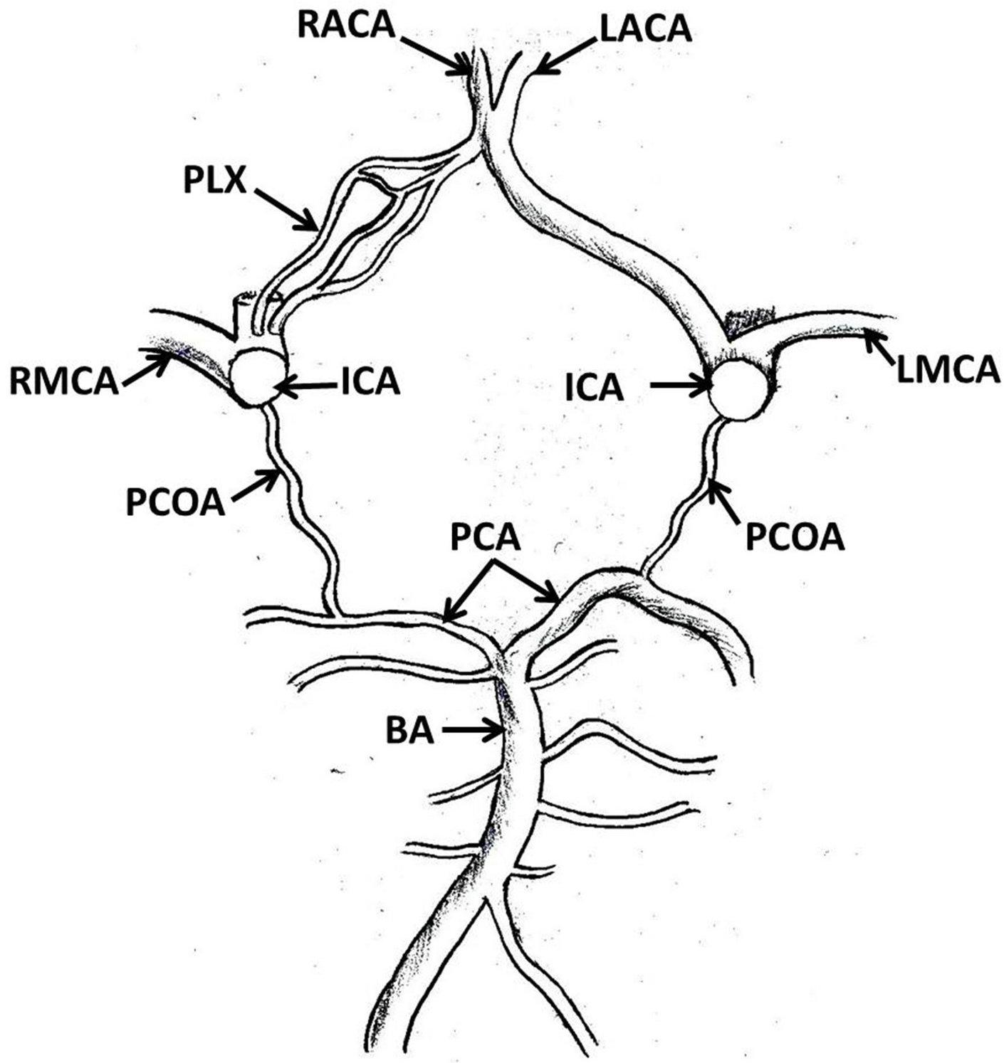 Hypoplastic Plexiform Right Anterior Cerebral Artery And