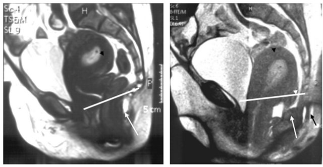 POPQ system and dynamic MRI in assessment of female