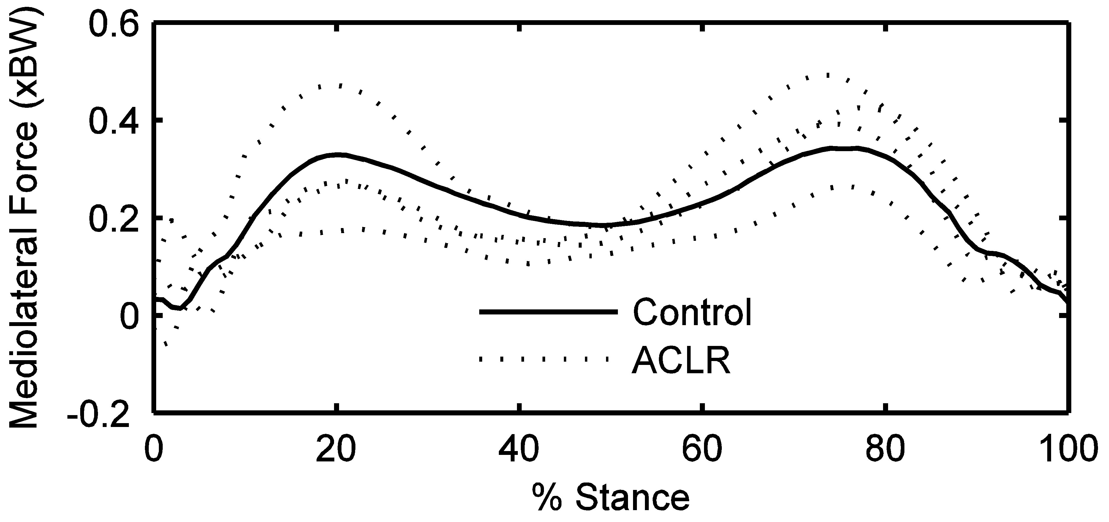 Tibiofemoral Joint Forces During The Stance Phase Of Gait