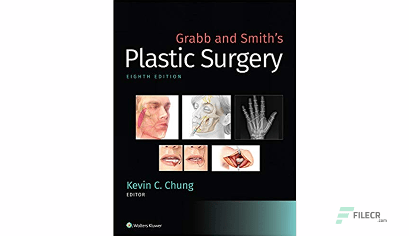 Grabb And Smith's Plastic Surgery 8th Edition