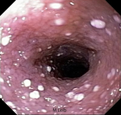Online Gallery Normal and Abnormal Findings for Upper