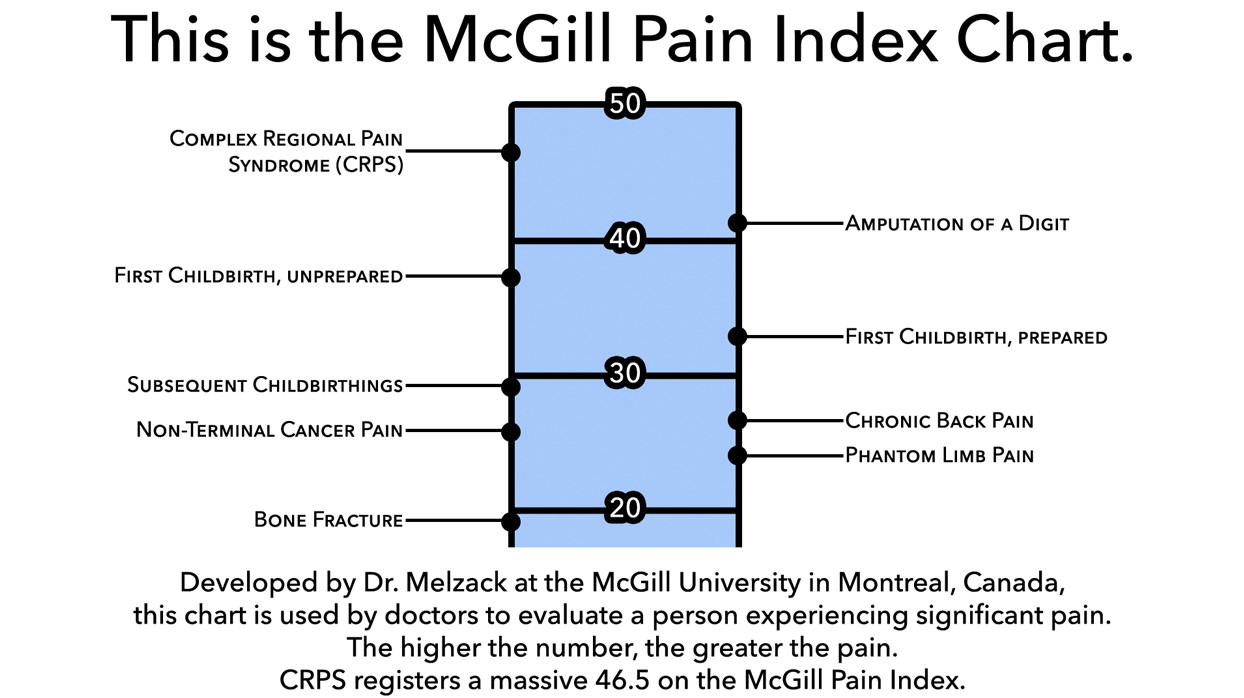 Complex Regional Pain Syndrome (CRPS) on the McGill Pain Index Chart