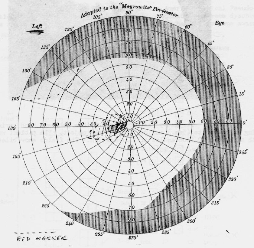 diagram of the left eye 1989 honda civic alarm wiring ufo symposium 1968 perimetry pg 160