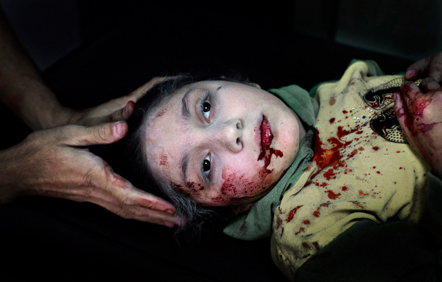 Die Unicef hat das Bild zum Foto des Jahres gekürt: Die verletzte 11-jährige Syrerin Dania Kilsi.