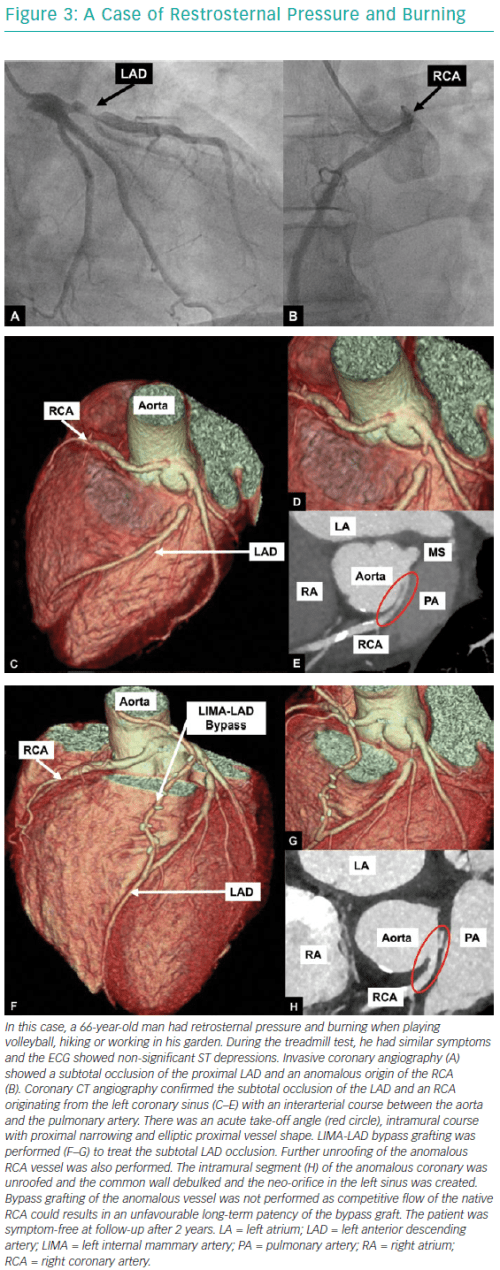 small resolution of a case of restrosternal pressure and burning