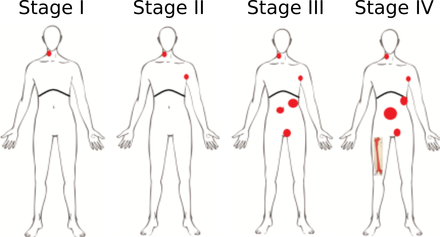 Prognosis And Staging Of Lymphoma