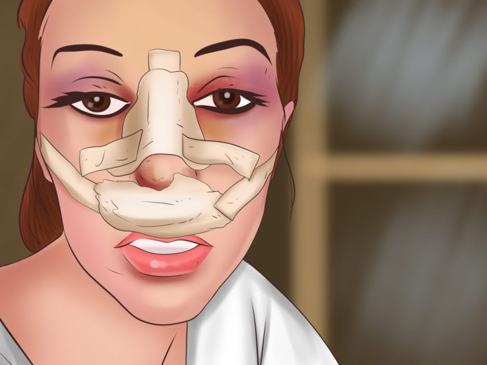 the bakit list of #why plastic surgery is frowned upon in ph - the