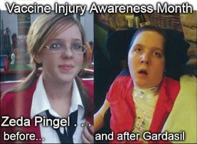 Zeda Pingel before and after Gardasil
