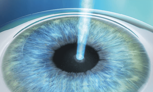 3. Reshaping the Cornea A laser will sculpt the corneal ti- ssue based on the eye structure. The new shape of the cornea will correct how light travels through the cornea to enable sharp vision.