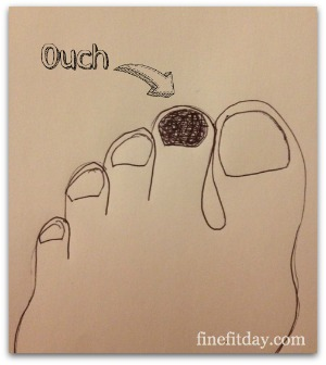 Marathon Training Week 8 - Black toenail