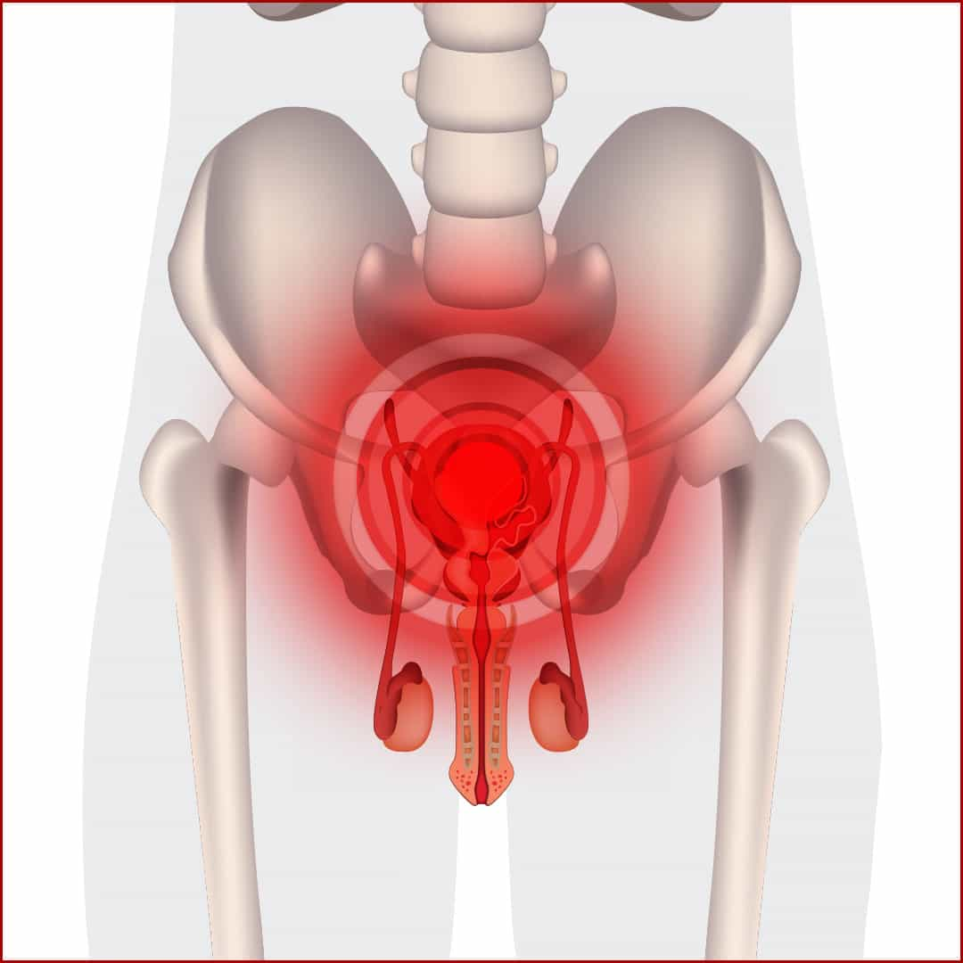 hight resolution of prostatitis treatment by dr allen