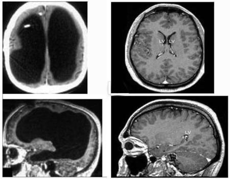 한 남성 뇌의 90%가 손상 됨 - The Lancet, Feuillet et al
